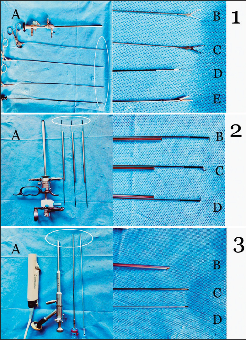 Figure 1: (A) 5 mm office hysteroscope; (B) 5 Fr tenaculum; (C) 5 Fr alligator forceps; (D) 5 Fr bipolar electrode; (E) 5 Fr scissors. 2: (A) 14.9 Fr gubbini resectoscope; (B) reusalble bipolar loop large; (C) reusable knife; (D) reusable loop electrode straight. 3: (A) TruClear™ handpiece; (B) TruClear™ Elite 6 mm hysteroscope; (C and D) TruClear™ soft tissue shaver mini